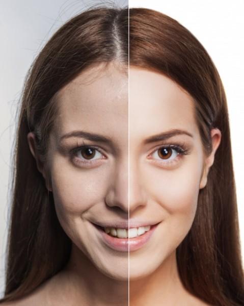 肌老化のビフォー・アフター