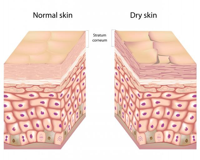 乾燥肌の状態
