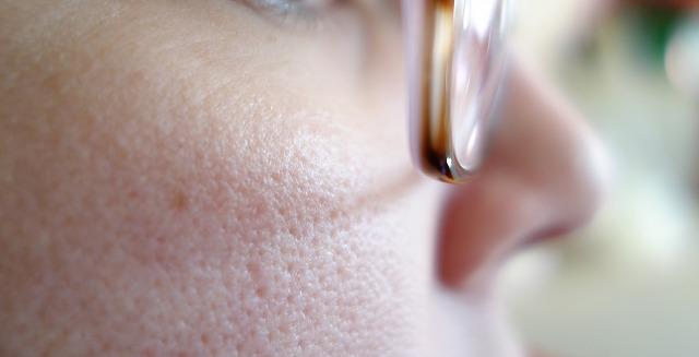 頬に毛穴が広がる女性