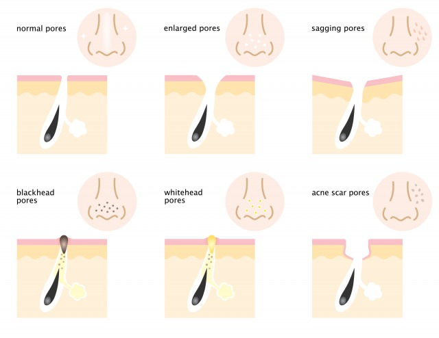 毛穴タイプイメージ図