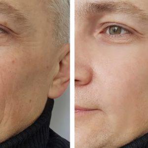 男性の肌老化イメージ
